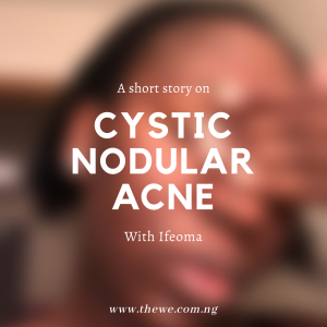 Story time with Ifeoma – Battling Cystic Nodular Acne!